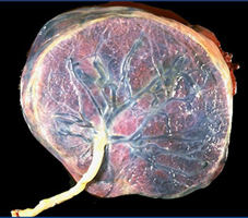 placenta e taglio del cordone ombelicale